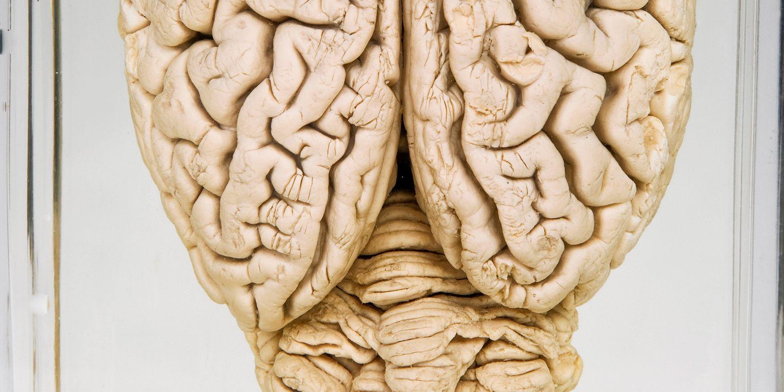 (Un)umkehrbar: Forscher beleben tote Schweinehirne teilweise wieder