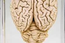 Ein konserviertes Schweinehirn. Stunden, nachdem die Schweine für die Nahrungsmittelproduktion geschlachtet worden waren, stellten Forscher die ...