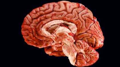 Galerie: Reise in unser Gehirn